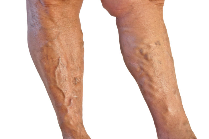 Варикозыне ноги