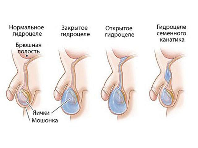 водянка яичек у новорожденного картинка