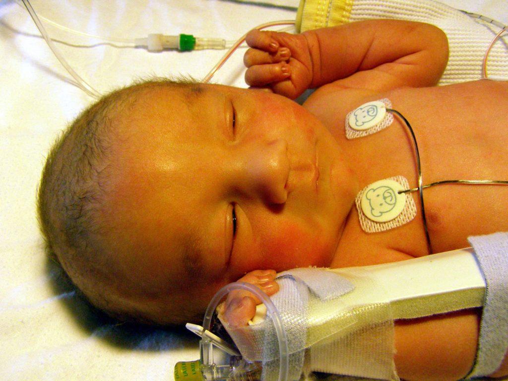 желтушность при гемолитической болезни новорожденного
