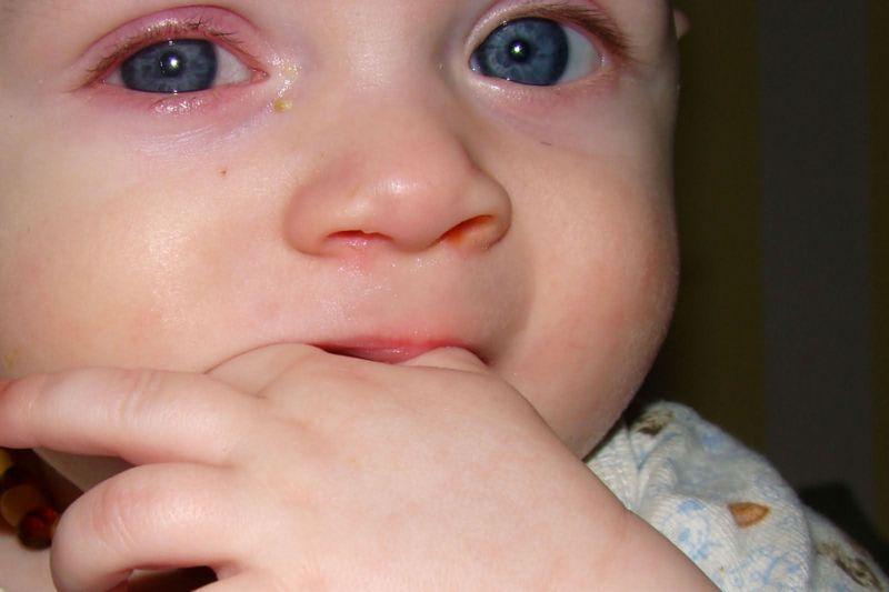 аллергия у грудничка