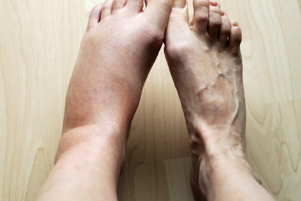 сравнение отекшей ноги и неотекшей