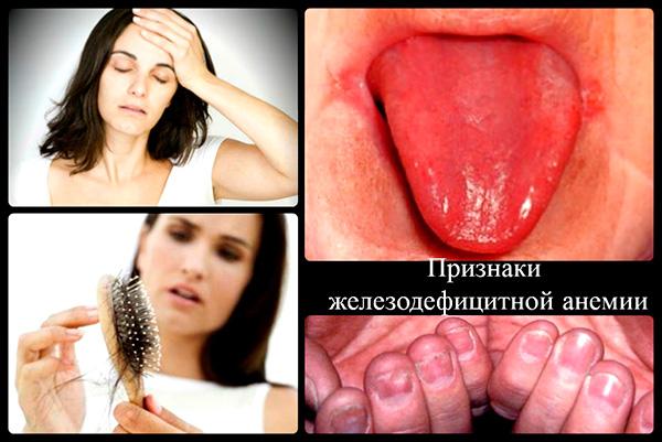 Возникновение железодефицитной анемии