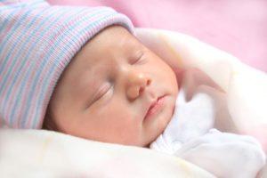 отеки у новорожденных