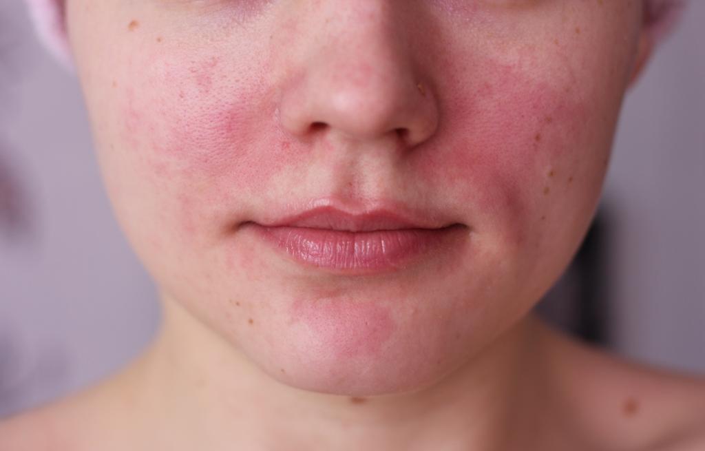 Развитие аллергии на коже