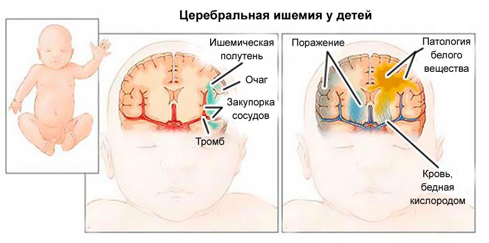 ишемическая болезнь у новорожденных и норма