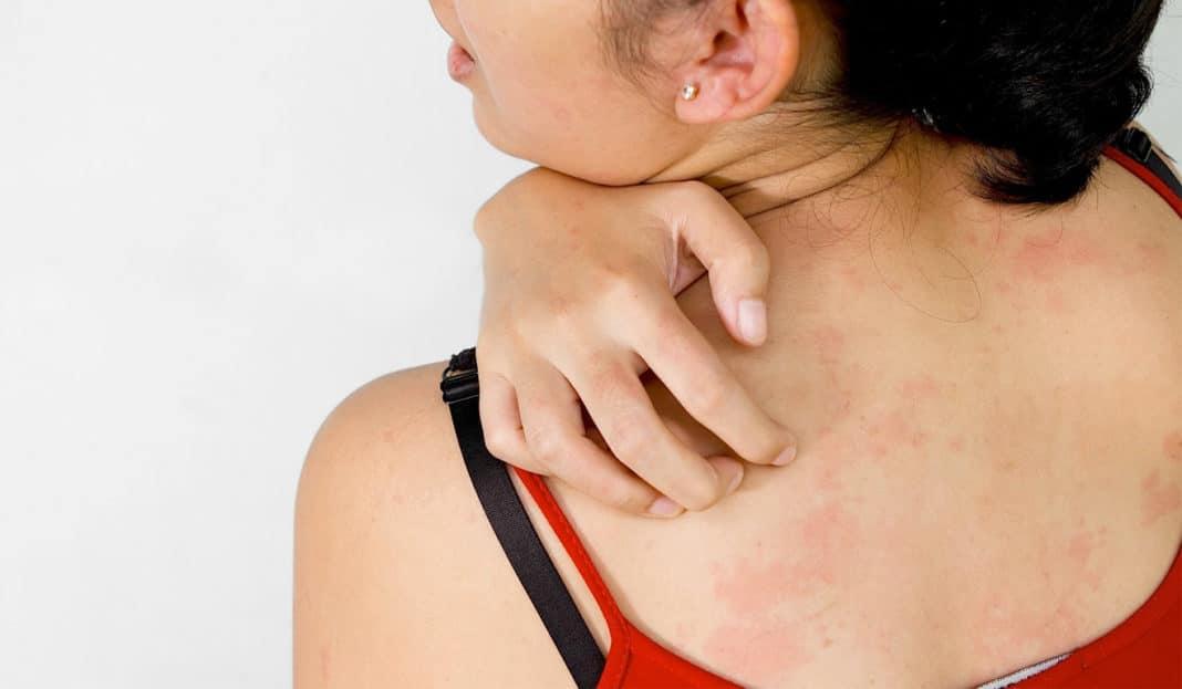 Ааллергия
