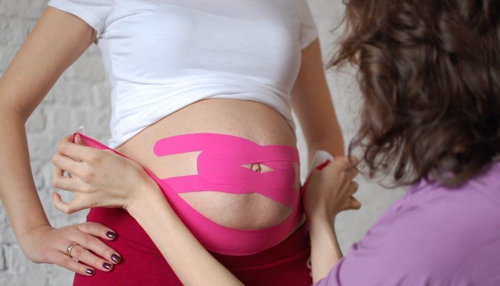 тейпирование при беременности