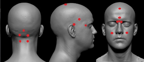 точки на голове от головной боли