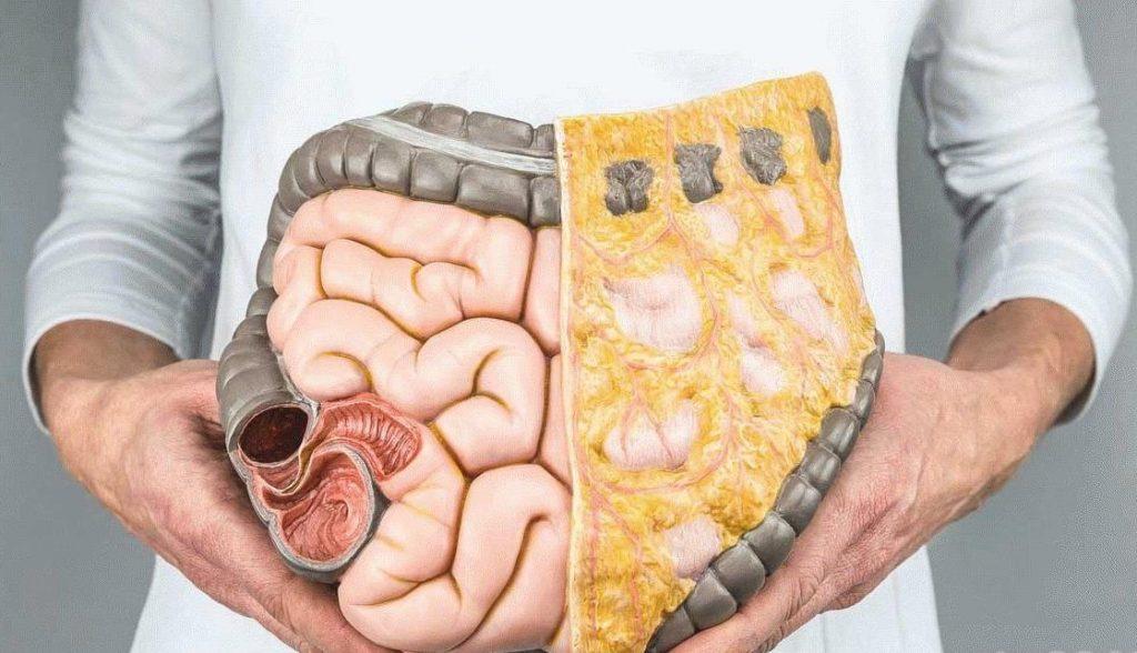 загрязненный кишечник