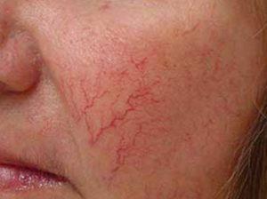 купероз на щеках