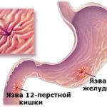 Язва 12-перстной кишки