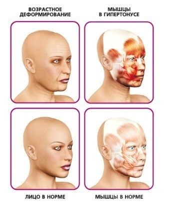 мышцы в гипертонусе и лицо