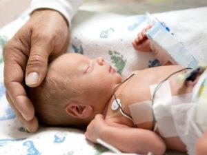 церебральная ишемия у новорожденных