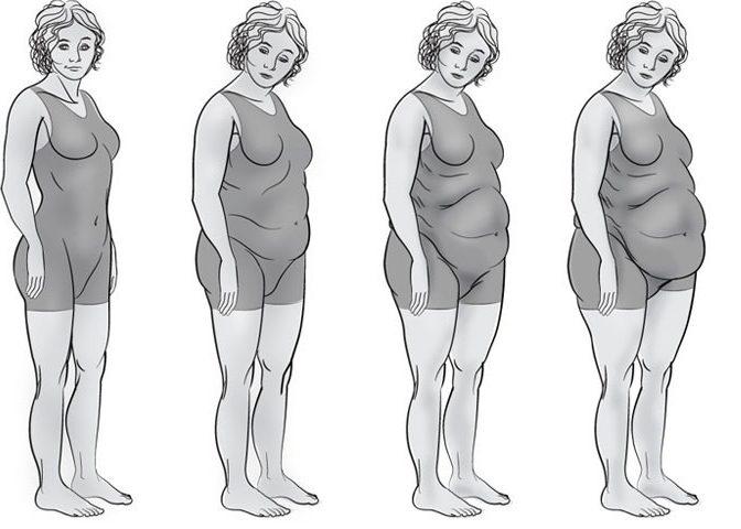 Алиментарный тип ожирения
