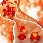 Уровень вредного холестерина