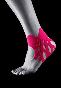 Кинезиотейпирование стопы при разных проблемах со ступней
