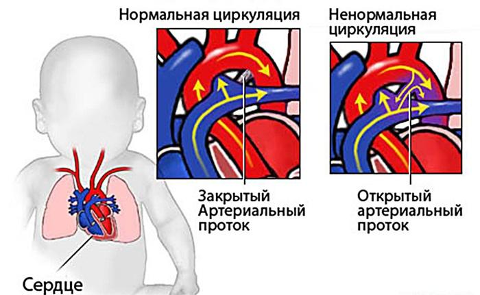 порок сердца у грудничка